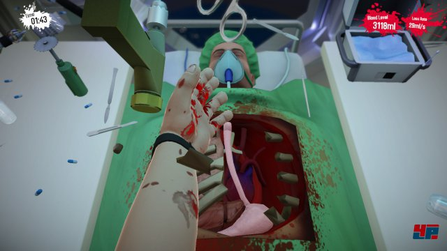 Screenshot - Surgeon Simulator 2013 (PC) 92526886