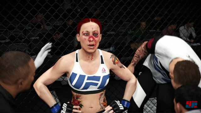 Screenshot - EA Sports UFC 2 (PlayStation4) 92522402